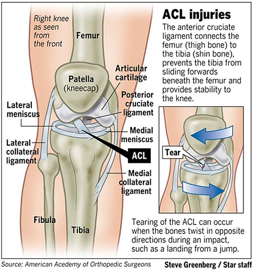 acl injuries essay Acl tears: their cause and prevention meredith shephard western kentucky university anterior cruciate ligament injuries are receiving a great deal of notice.